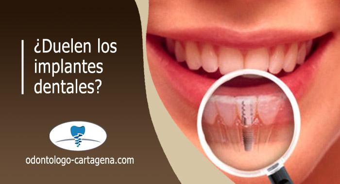 implante-dental-duele