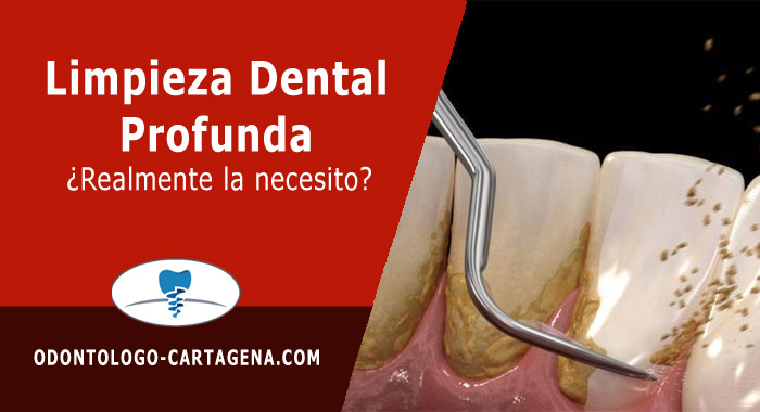 limpieza-dental-profunda