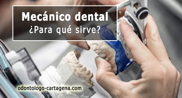 mecanico-dental