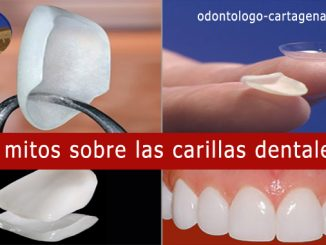 Mitos carillas dentales