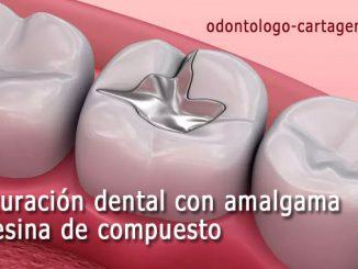 Obturación dental amalgama