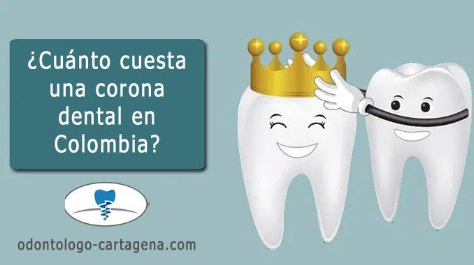Precio corona dental en Colombia