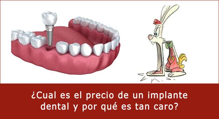 precio-implante