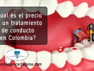 Precio tratamiento de conducto Colombia