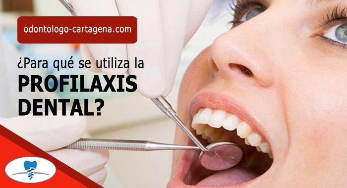 profilaxis-dental