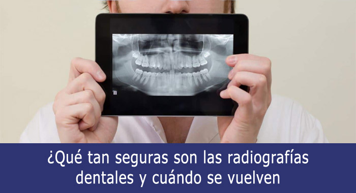 seguras-radiografias