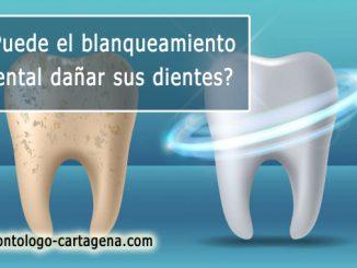 Blanqueamiento dental daña sus dientes