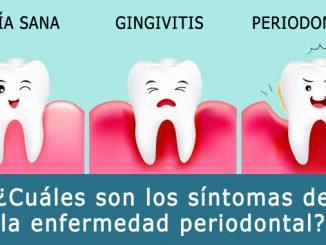 ¿Cuáles son los síntomas de la enfermedad periodontal?