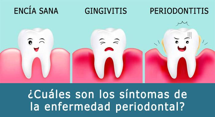 sintomas-periodontal