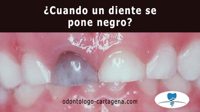 ¿Cuando un diente se pone negro?