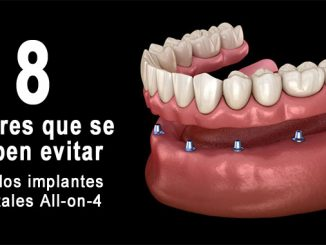 Errores implantes all-on-4