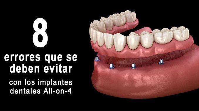 Errores implantes all-on-4