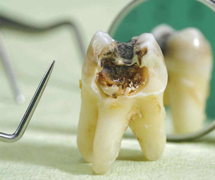 aspecto de la caries dental