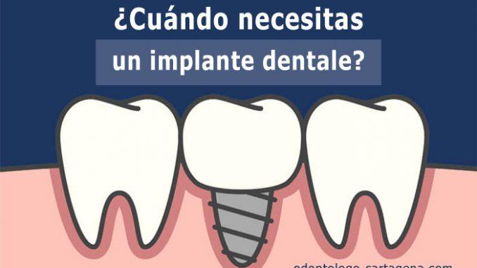 ¿Cuándo necesitas un implante dental?