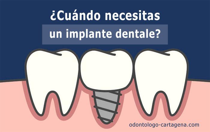 cuando-implante-dentale