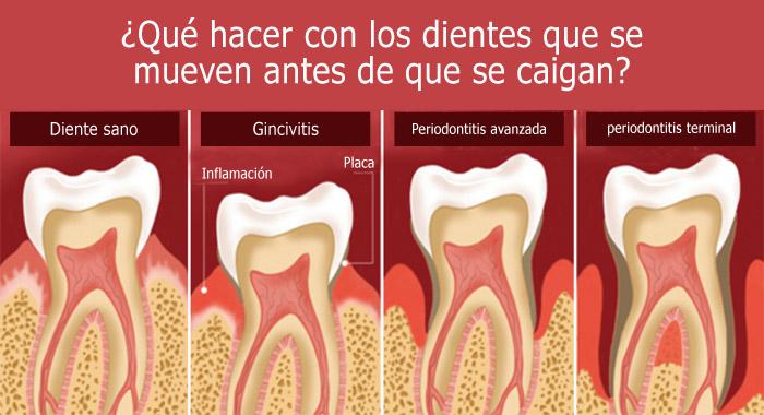 dientes-mueven