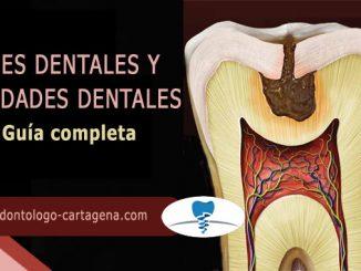 Guia caries y cavidades dentales