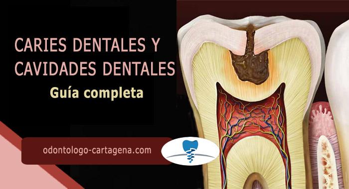 guia-caries-dentales