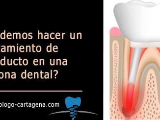 Tratamiento de conducto en una corona dental