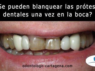 Se pueden blanquear las prótesis dentales