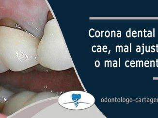 Corona dental que se cae