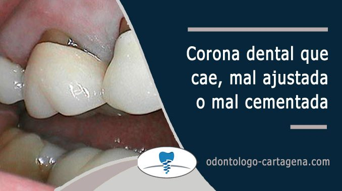 Corona dental que se cae