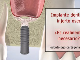 Implante dental e injerto óseo