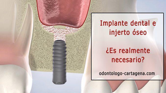 Implante dental e injerto óseo