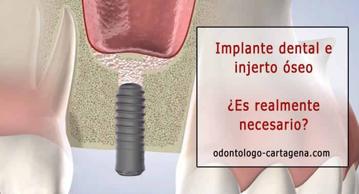 implante-injerto