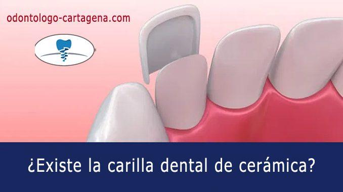¿Existe la carilla dental de cerámica?