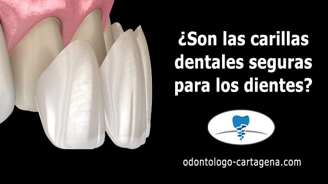 ¿Son las carillas dentales seguras para los dientes?