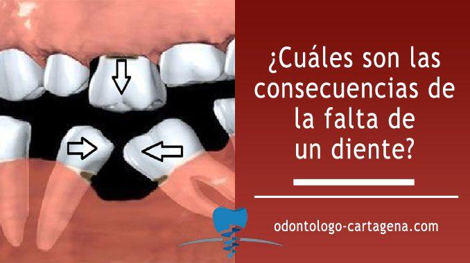 ¿Cuáles son las consecuencias de la falta de un diente?