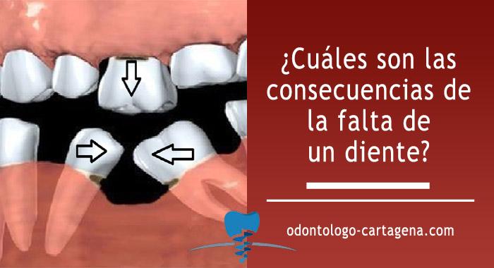 consecuencias-falta-diente