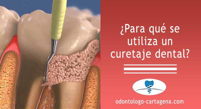 curetaje-dental