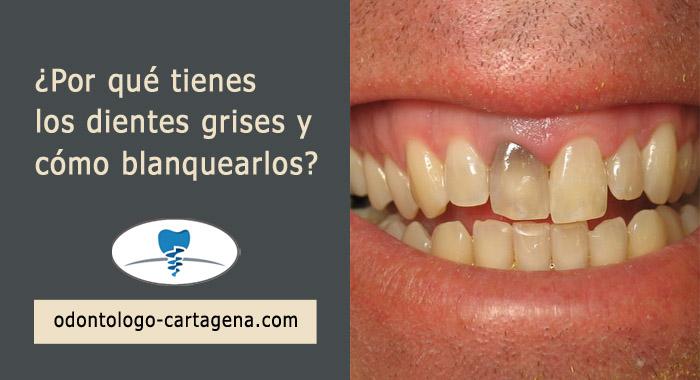 dientes-grises