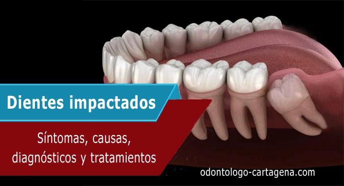 dientes-impactados