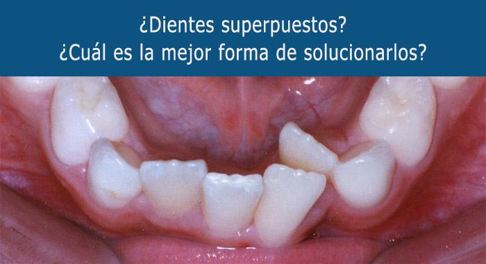 dientes-superpuestos