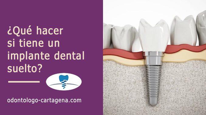 ¿Qué hacer si tiene un implante dental suelto?