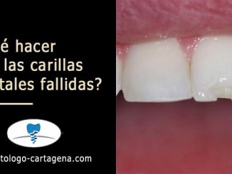 ¿Qué hacer con las carillas dentales fallidas?