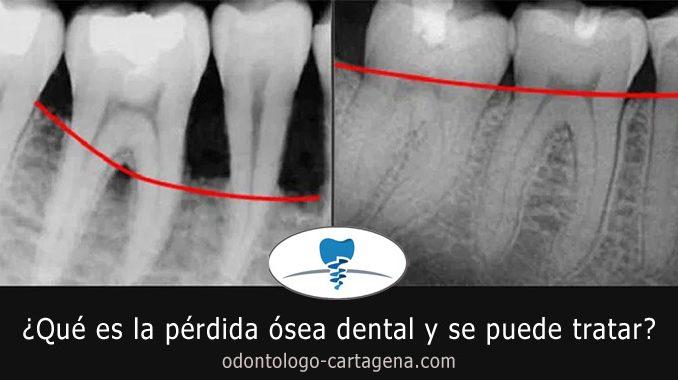 Perdida osea dental