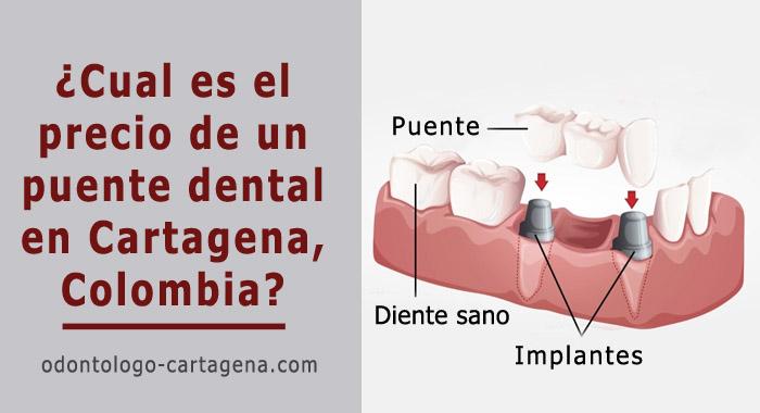 costo-puente-dental