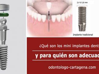 mini implantes dentales