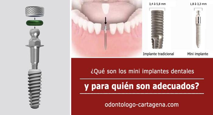 mini-implante-dental