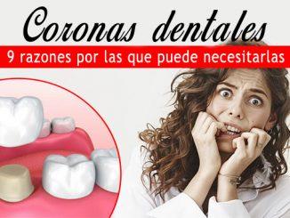 Coronas dentales: 9 razones