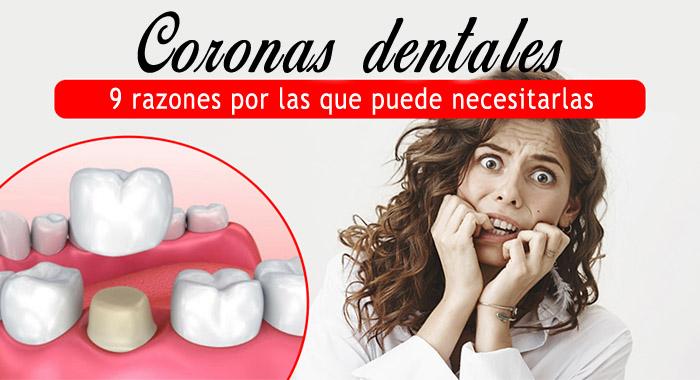 razones-coronas-dentales