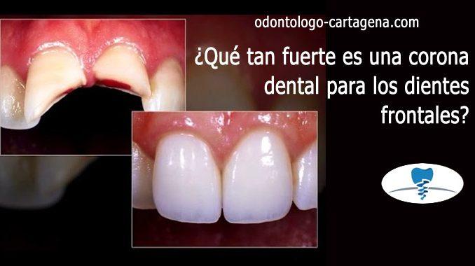 corona dental para los dientes frontales