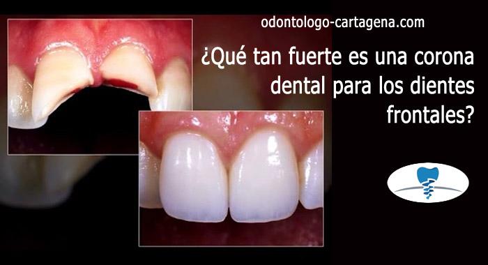 corona-dental-frontal