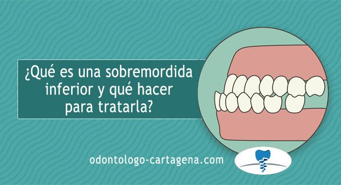 sobremordida-diente