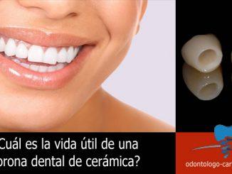 Corona dental de cerámica