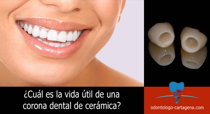 corona-dental-ceramica